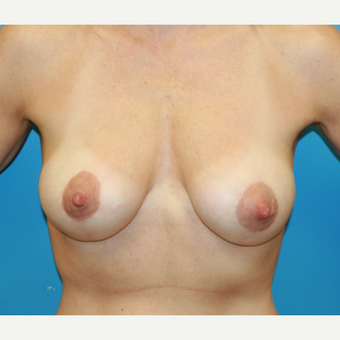44 year old woman treated with Breast Lift after 3582027