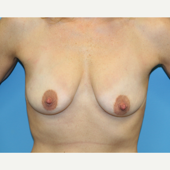 44 year old woman treated with Breast Lift before 3582027