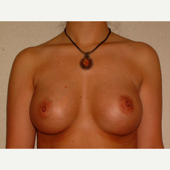 26 y/o Transaxillary Submuscular Breast Augmentation after 3066409