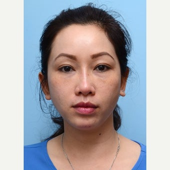 Eye Bags Treatment Using Restylane after 2014063