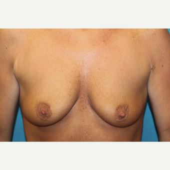 45-54 year old woman treated with Breast Augmentation and Breast Lift before 3524404