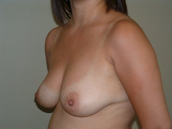Breast Augmentation before 683137
