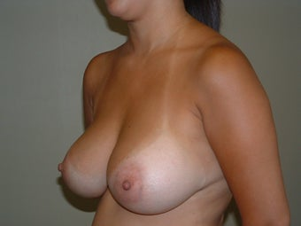 Breast Augmentation after 683137