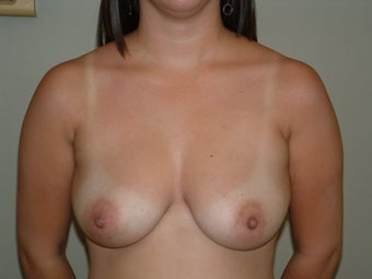 Breast Augmentation 683137