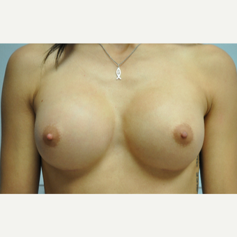 25-34 year old woman treated with Breast Augmentation after 3326927