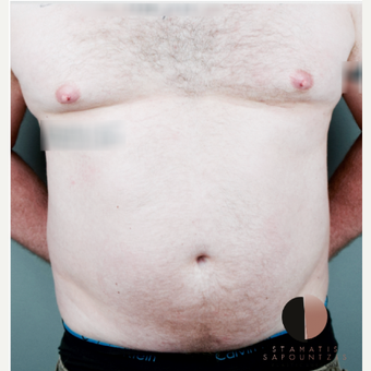 35-44 year old man treated with Liposculpture- abdominal etching before 3162617
