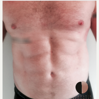 35-44 year old man treated with Liposculpture- abdominal etching after 3162617