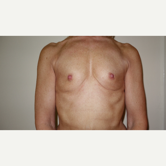 45-54 year old woman treated with Breast Augmentation before 3031296