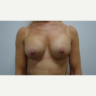 45-54 year old woman treated with Breast Augmentation after 3031296