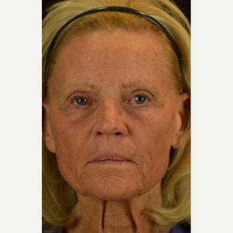 55-64 year old woman treated with Halo Laser after 3004718
