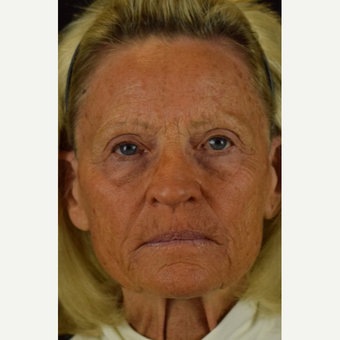 55-64 year old woman treated with Halo Laser before 3004718
