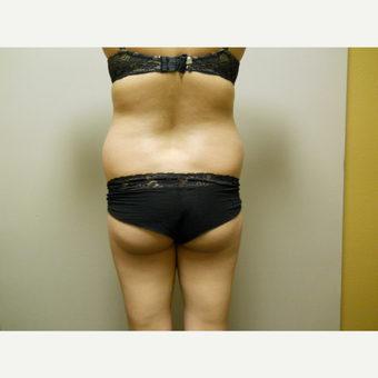 25-34 year old woman treated with Liposuction before 3454806