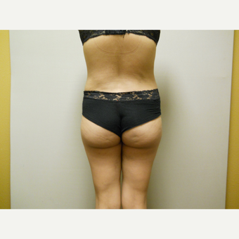 25-34 year old woman treated with Liposuction after 3454806