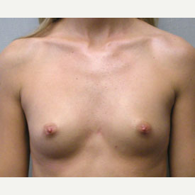 Breast Augmentation before 3681046