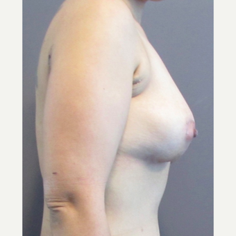 33 year-old female underwent an anchor incision breast lift. after 3437493
