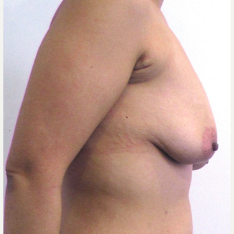 33 year-old female underwent an anchor incision breast lift. before 3437493