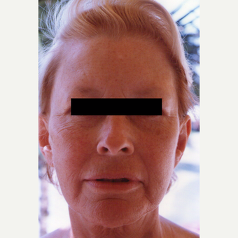 35-44 year old woman treated with Chemical Peel before 3543922