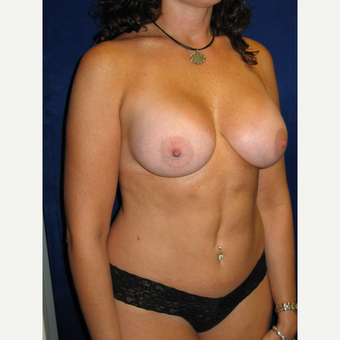 35-44 year old woman treated with Breast Implants after 3727216