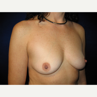 35-44 year old woman treated with Breast Implants before 3727216