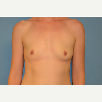 37  year old woman treated with silicone Breast Implants before 3105995
