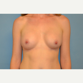 37  year old woman treated with silicone Breast Implants after 3105995