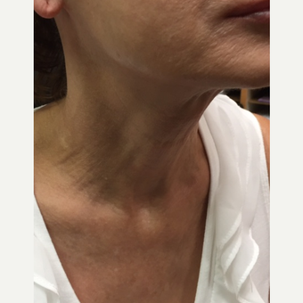 55-64 year old woman treated with Infini RF after 3566195