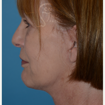 55-64 year old woman treated with MACS Facelift after 3664179