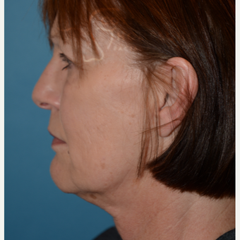 55-64 year old woman treated with MACS Facelift before 3664179