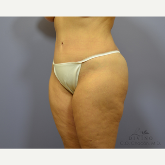 55-64 year old woman treated with Tummy Tuck after 3415754