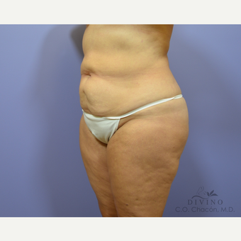 55-64 year old woman treated with Tummy Tuck before 3415754