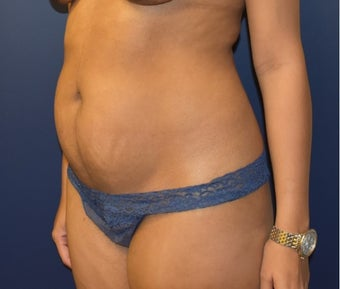 35-44 year old woman treated with Tummy Tuck before 3348776
