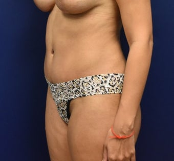 35-44 year old woman treated with Tummy Tuck after 3348776