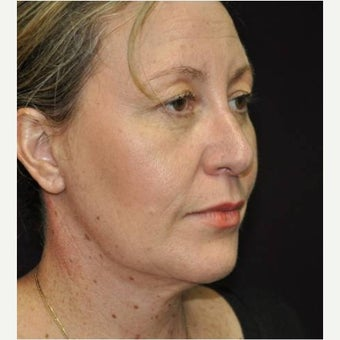 45-54 year old woman treated with Neck Lift after 1577050
