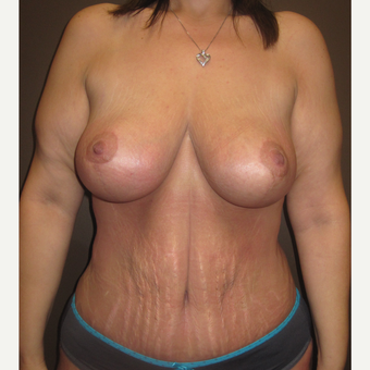 35-44 year old woman treated with Mommy Makeover after 3321122