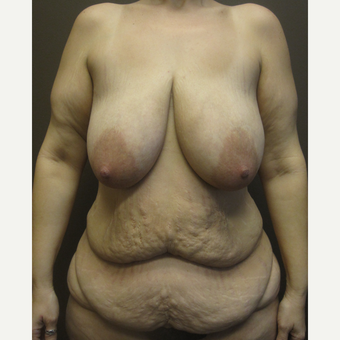 35-44 year old woman treated with Mommy Makeover before 3321122