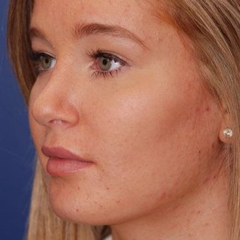 18-24 year old woman treated with Rhinoplasty after 3624355