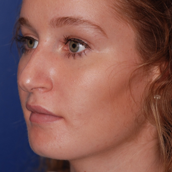 18-24 year old woman treated with Rhinoplasty before 3624355