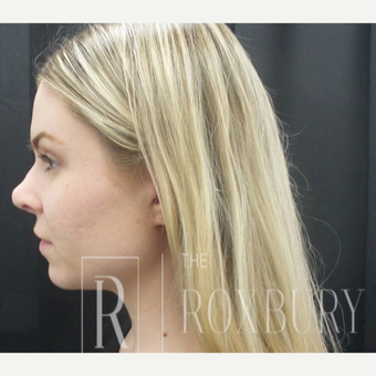 25-34 year old woman treated with Non Surgical Nose Job before 3732732