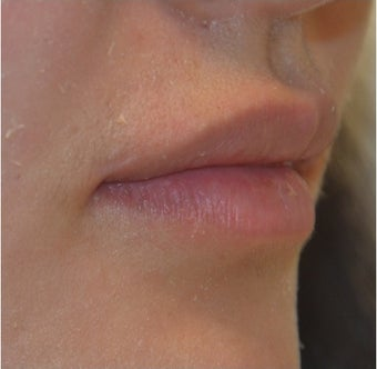 23 Year Old Female Treated for Lip Augmentation 1373416