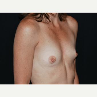 25-34 year old woman treated with Breast Implants before 3650950