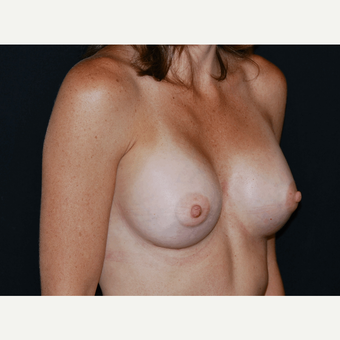 25-34 year old woman treated with Breast Implants after 3650950