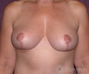 Breast Reduction after 1155575