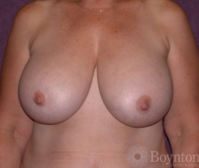 Breast Reduction before 1155575