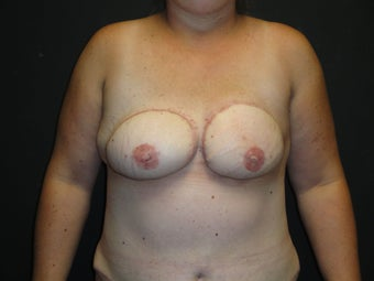 Flap-based breast reconstruction - DIEP after 867409