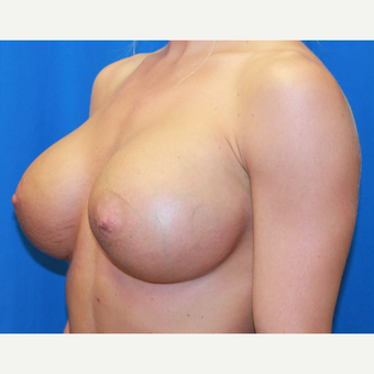 18-24 year old woman treated with Breast Augmentation after 3104619