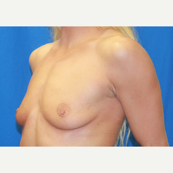 18-24 year old woman treated with Breast Augmentation before 3104619