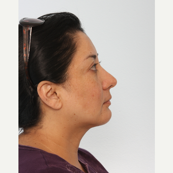 Chin Implant after 3550306