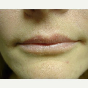 25-34 year old woman treated with Restylane Silk before 2413329