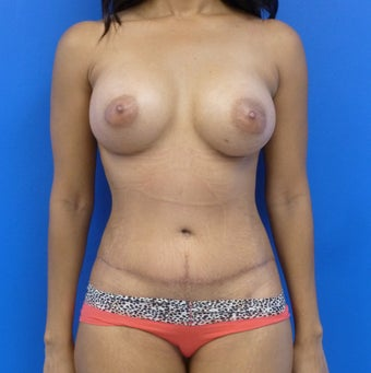 34y.o. female - breast augmentation & abdominoplasty; 397cc / 457 cc silicone implants after 1032028
