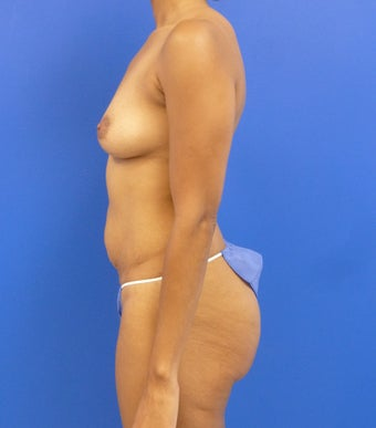 34y.o. female - breast augmentation & abdominoplasty; 397cc / 457 cc silicone implants 1032028